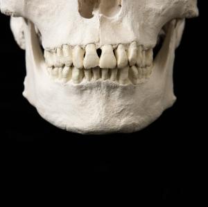 Jaw on skull.