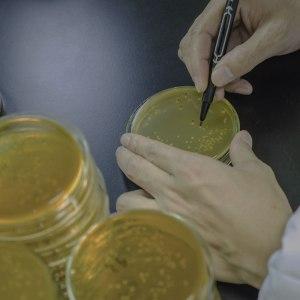 agar-plate-bacterium
